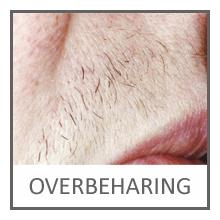 Overbeharing